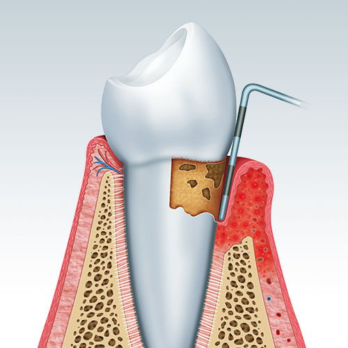 Dr. Laporta Dental Implant in Manchester, CT