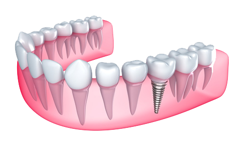 Dental Implant in Manchester, CT